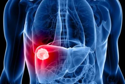 México aprueban nuevo medicamento para la hepatitis C
