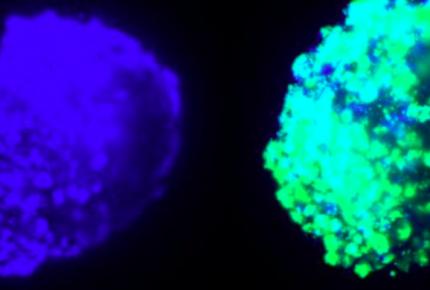 Desarrollan un nuevo tratamiento para tumores cerebrales